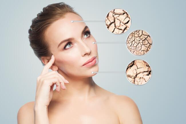 皮膚の乾燥に悩む女性