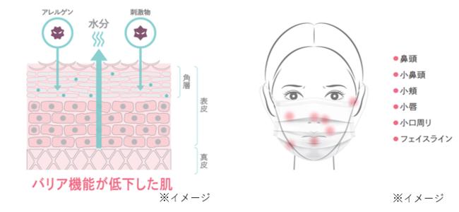 マスク敏感肌の原因